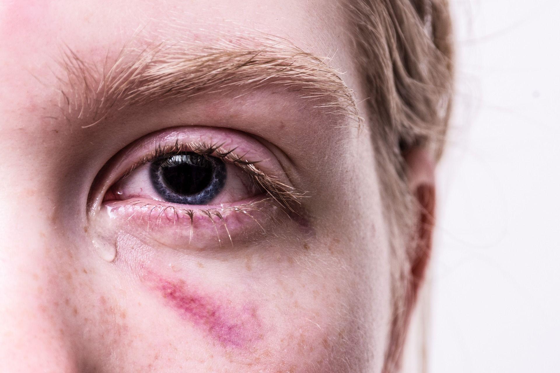 Blaues Auge und Tränen bei einer jungen Frau